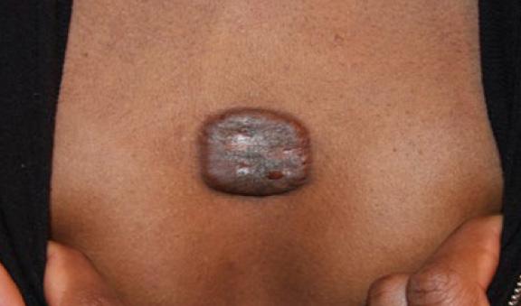 chest keloid