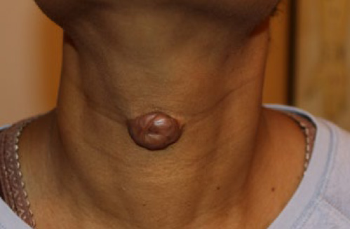 neck keloid